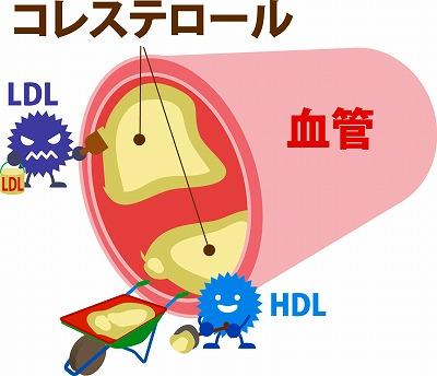 健康診断で高LDLコレステロール血症で要治療