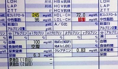 健康診断でLDLコレステロールが高い